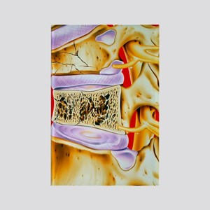 Osteoporitic spine Rectangle Magnet