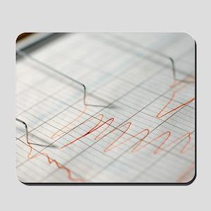 Lie detector traces Mousepad