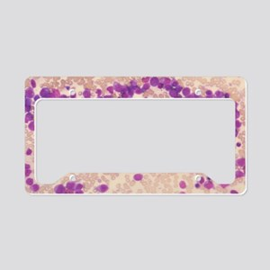 LM of blood cells in acute my License Plate Holder