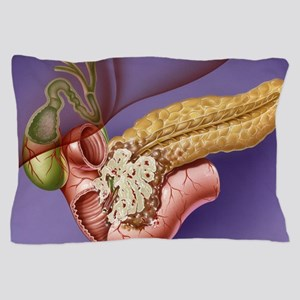 Pancreatic cancer, artwork Pillow Case