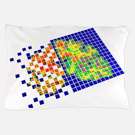 Alzheimer's disease Pillow Case