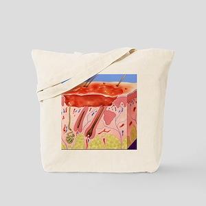 Second-degree burn, artwork Tote Bag