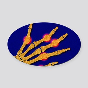 Arthritic hand Oval Car Magnet