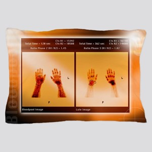 Arthritic hands, scintigram Pillow Case