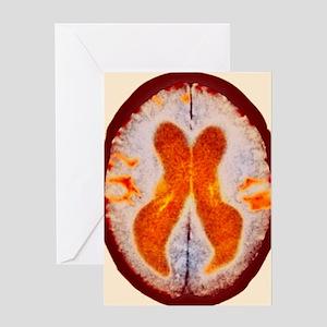 Alzheimer's disease brain, coloured  Greeting Card
