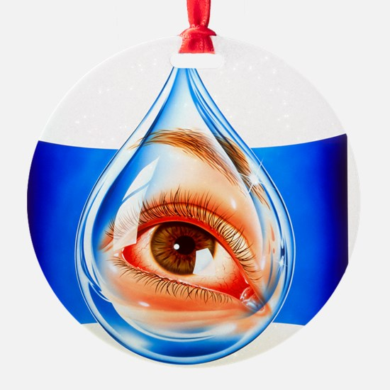Artwork of an eye with conjunctivit Ornament