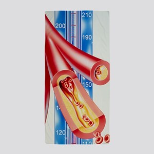 Artwork of atherosclerosis Beach Towel