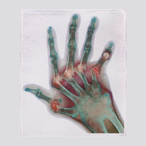 Arthritic hand, X-ray Throw Blanket