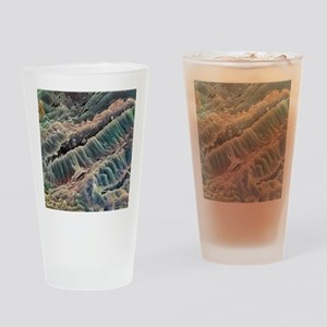 Ulcerative colitis, SEM Drinking Glass