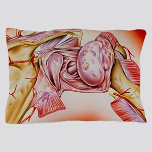Artwork of an rheumatoid arthritis of  Pillow Case