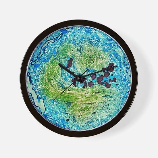 Alzheimer's disease brain cell, TEM Wall Clock