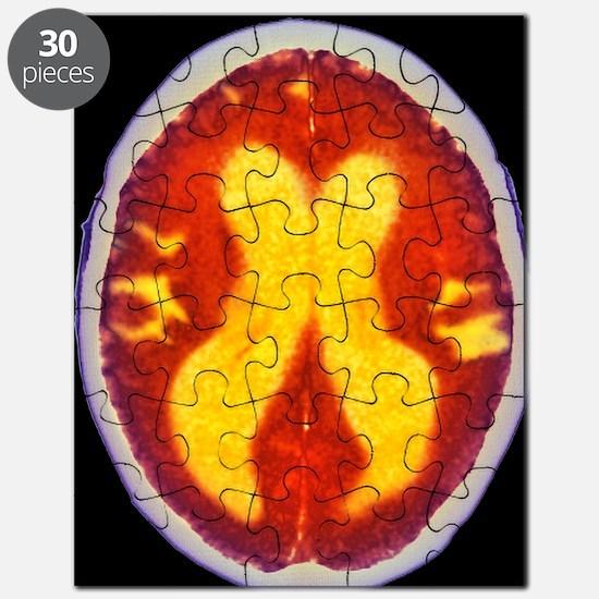Alzheimer's disease brain, coloured CT scan Puzzle