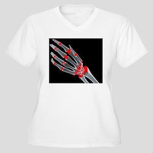 Arthritic hand Women's Plus Size V-Neck T-Shirt