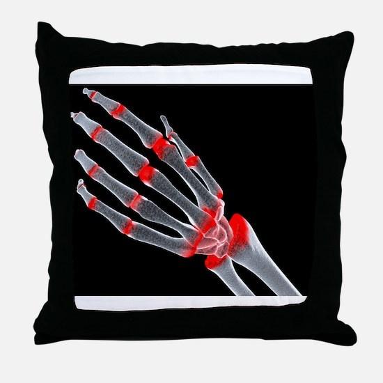 Arthritic hand Throw Pillow