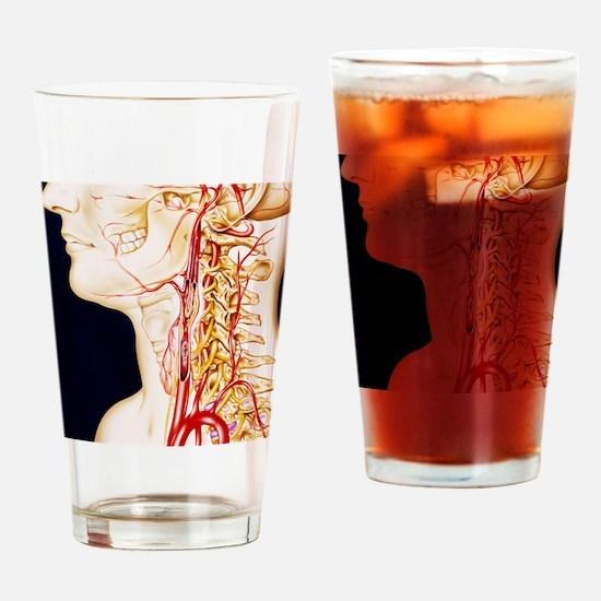 Vascular diseases Drinking Glass