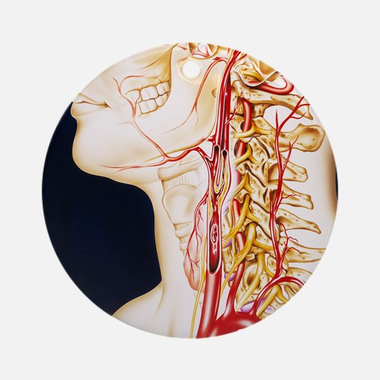 Vascular diseases Round Ornament