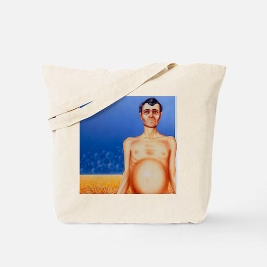 Artist's depiction of coeliac disease Tote Bag