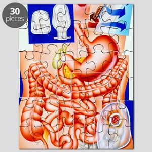 Artwork of human intestines and colostomy Puzzle