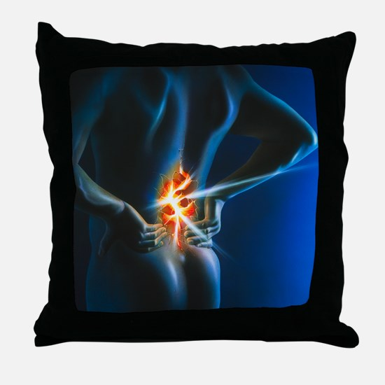 Artwork of man holding his lower back Throw Pillow