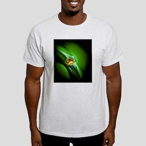 Artwork showing arthritis of the kne Light T-Shirt