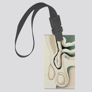 Artwork showing scrotum with ing Large Luggage Tag
