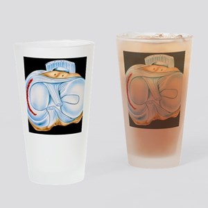 Artwork of torn knee cartilage in s Drinking Glass