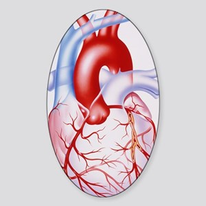 Artwork showing atherosclerosis of  Sticker (Oval)