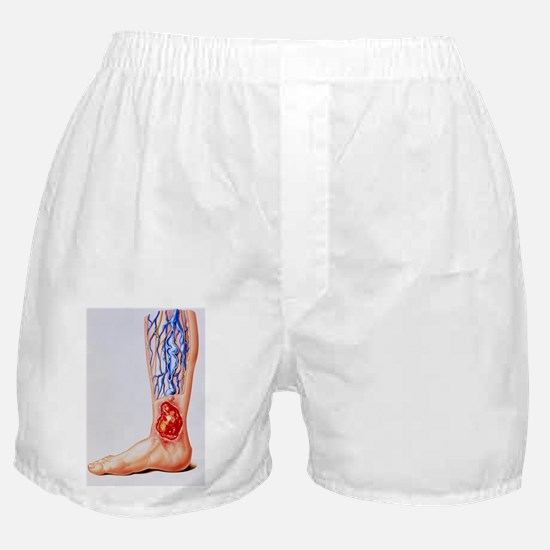 Artwork of varicose veins Boxer Shorts
