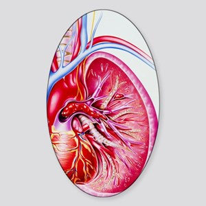 Artwork showing a pulmonary embolis Sticker (Oval)