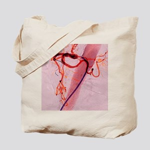 Balloon angioplasty, X-ray Tote Bag