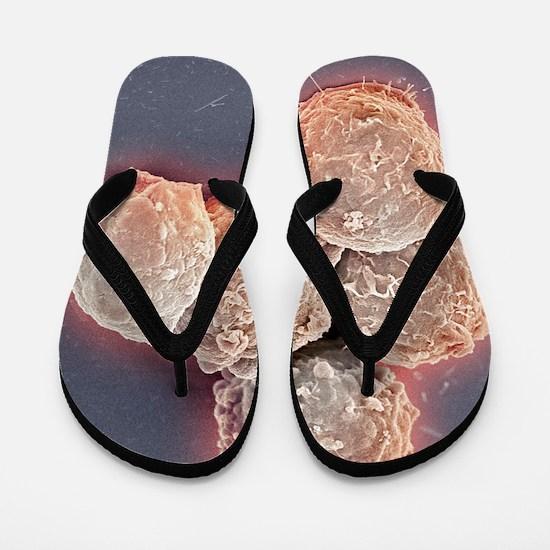 Blood cancer cells, SEM Flip Flops
