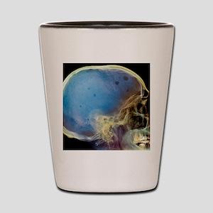 Bone marrow cancer, X-ray Shot Glass