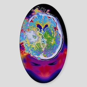 Brain malfunction Sticker (Oval)