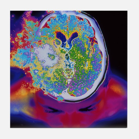 Brain malfunction Tile Coaster