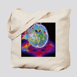 Brain malfunction Tote Bag