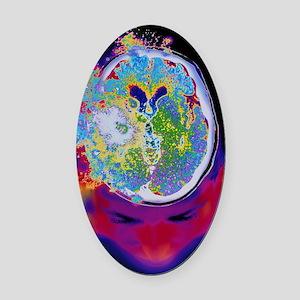Brain malfunction Oval Car Magnet