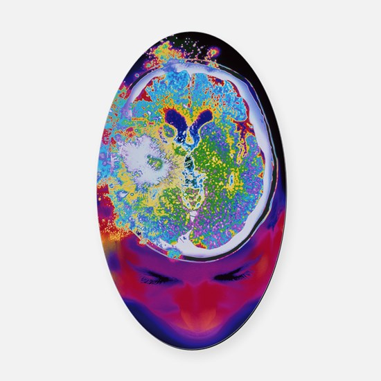 Brain malfunction Oval Car Magnet