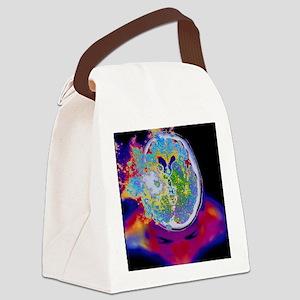 Brain malfunction Canvas Lunch Bag