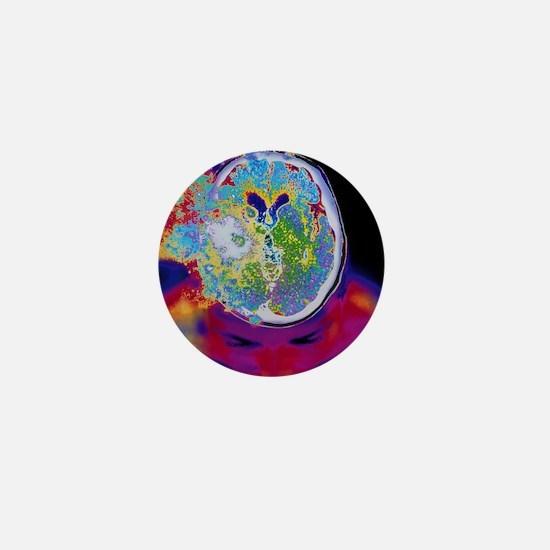 Brain malfunction Mini Button