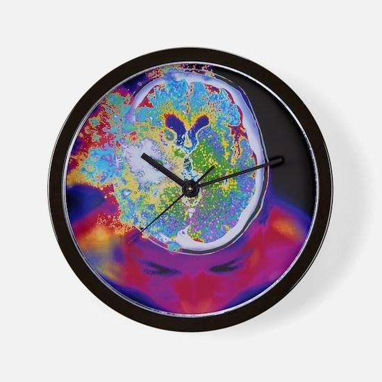Brain malfunction Wall Clock