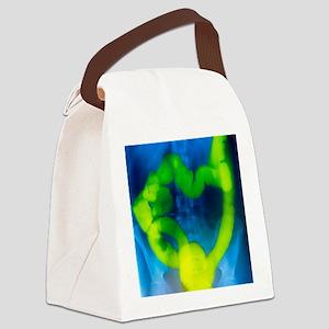 Barium enema X-ray showing cancer Canvas Lunch Bag