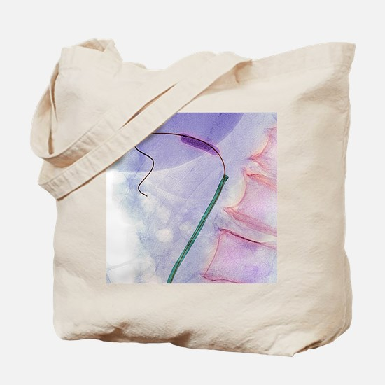 Balloon angioplasty, X-ray Tote Bag