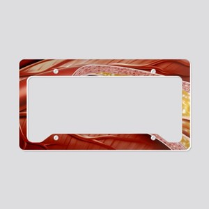 Blocked coronary artery, artw License Plate Holder