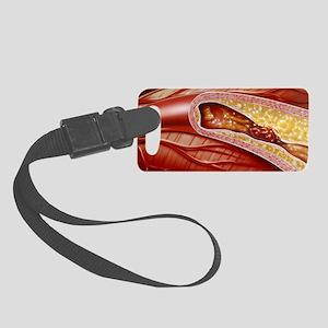 Blocked coronary artery, artwork Small Luggage Tag