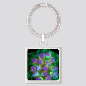 Breast cancer cells, light microgr Square Keychain