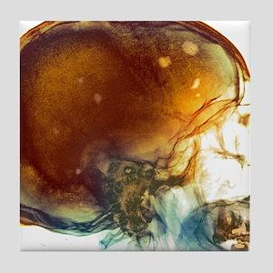 Bone marrow cancer, X-ray Tile Coaster