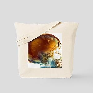 Bone marrow cancer, X-ray Tote Bag