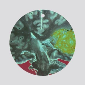 Brain tumour Round Ornament