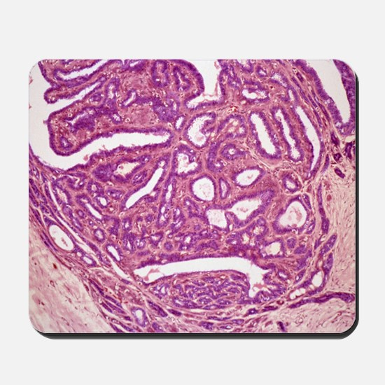 Breast fibroadenoma, light micrograph Mousepad