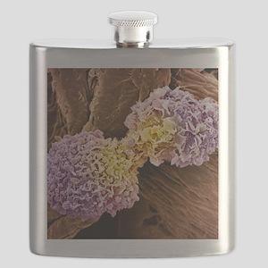 Breast cancer cells, SEM Flask